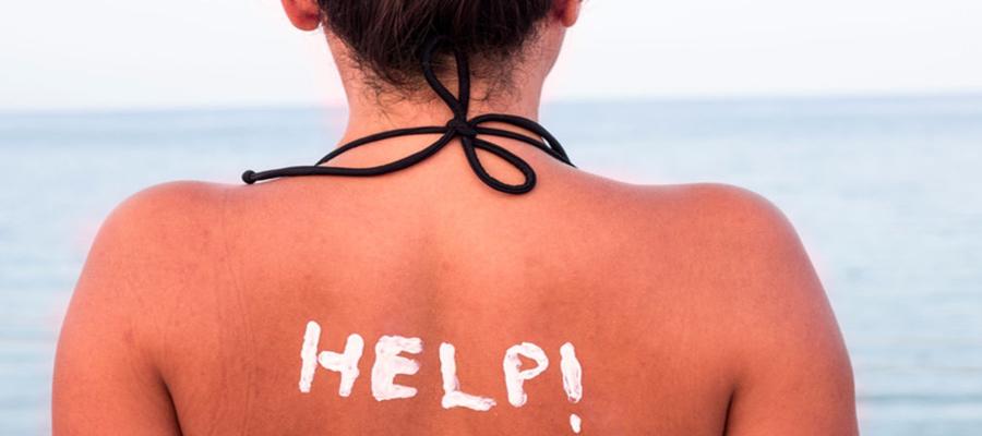 10 astuces pour calmer un coup de soleil plurielle - Bepanthen pour coup de soleil ...